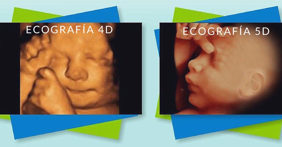 diferencias ecografia 5d y 4d